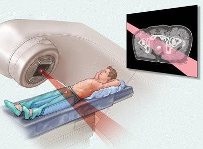 Ung thư tinh hoàn: thông tin cơ bản về phát hiện, thăm khám và điều trị