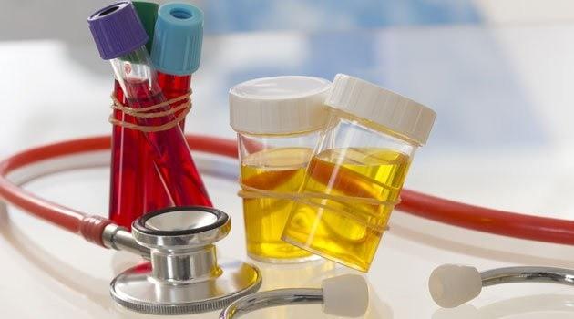 Xét nghiệm nước tiểu để kiểm tra viêm niệu đạo