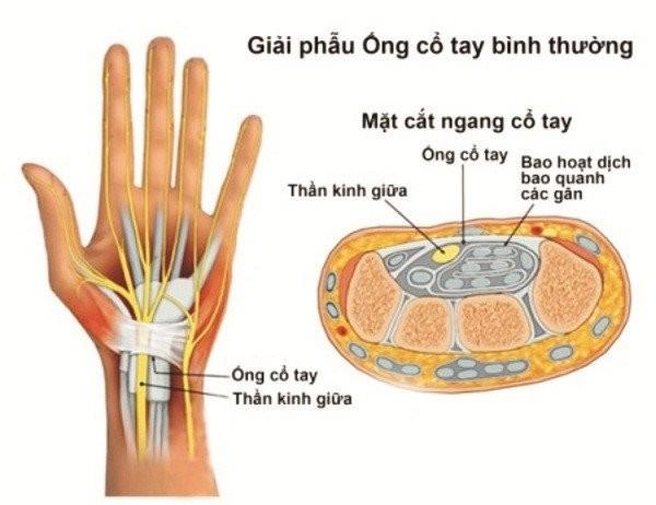 hội chứng ống cổ tay 1