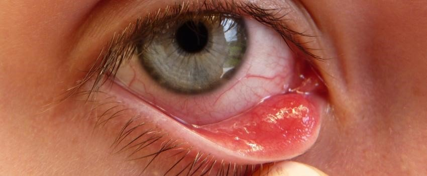 lẹo mắt 2