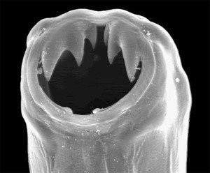 Đầu giun móc dưới kính hiển vi điện tử
