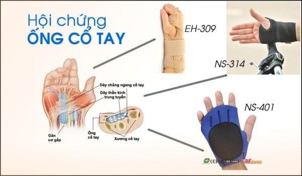 hội chứng ống cổ tay 2