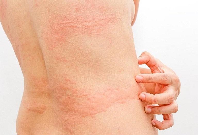 Thuốc Aerius có tác dụng chữa các triệu chứng liên quan đến mày đay