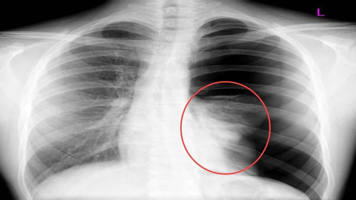 Tràn dịch màng phổi: Triệu chứng – Nguyên nhân – Điều trị