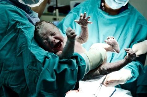 Sinh em bé và lấy bánh nhau ra ngoài là cách điều trị tiền sản giật tốt nhất