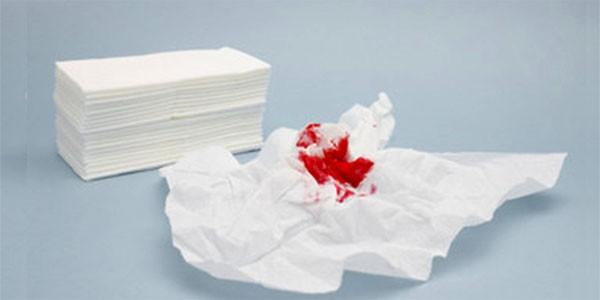 Chảy máu tiêu hóa dưới là gì? Nguyên nhân do đâu?
