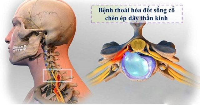 Thoái hóa đốt sống cổ có thể gây chèn ép thần kinh và gây đau