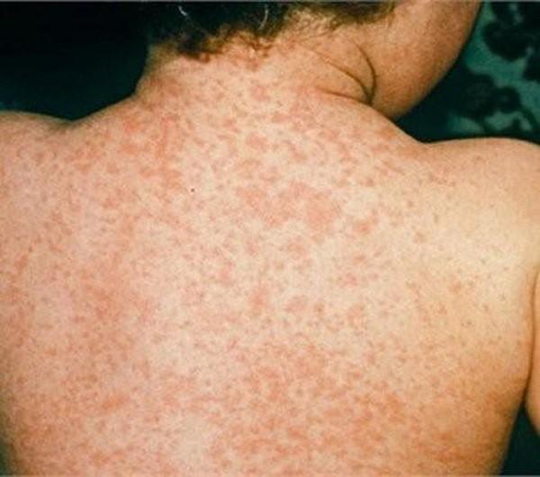 Dấu hiệu nhận biết bệnh Rubella