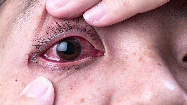 Chảy nước mắt và mắt đỏ là triệu chứng thường gặp