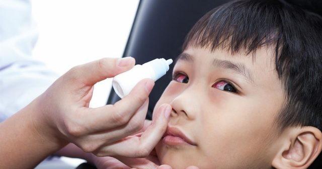 Dùng thuốc nhỏ mắt kháng sinh để điều trị mắt đỏ