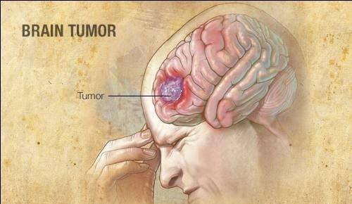 Khối uKhối u tác nhân dẫn đến Ung thư não
