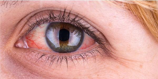 Xuất huyết dưới kết mạc mắt (đỏ mắt) có nguy hiểm hay không?