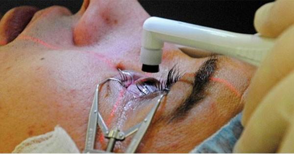 điều trị tăng nhãn áp bằng phương pháp phẫu thuật