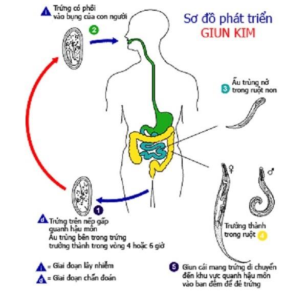 Quá trình lây nhiễm của giun kim
