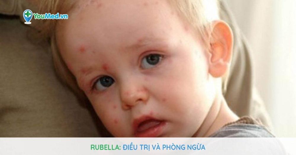 Rubella: Điều trị và phòng ngừa