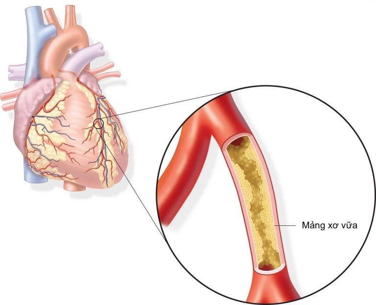 Xơ vữa động mạch làm hẹp lòng động mạch vành dẫn đến thiếu máu cơ tim