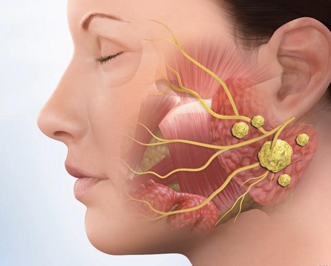 Sỏi tuyến nước bọt có thể gây tắc nghẽn ống tuyến dẫn đến viêm nhiễm