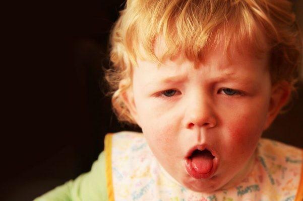 Ho là triệu chứng nổi bật nhất khi trẻ mắc bệnh ho gà