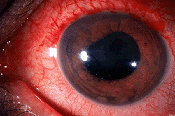 Mắt sưng đỏ là triệu chứng rất thường gặp trong viêm màng bồ đào.
