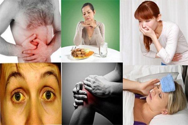 Các triệu chứng của viêm gan cấp