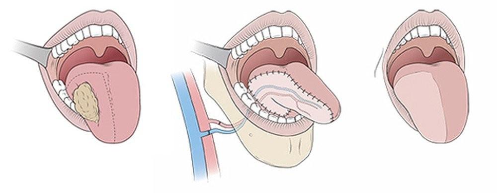 Phẫu thuật cắt một phần lưỡi và tái tạo