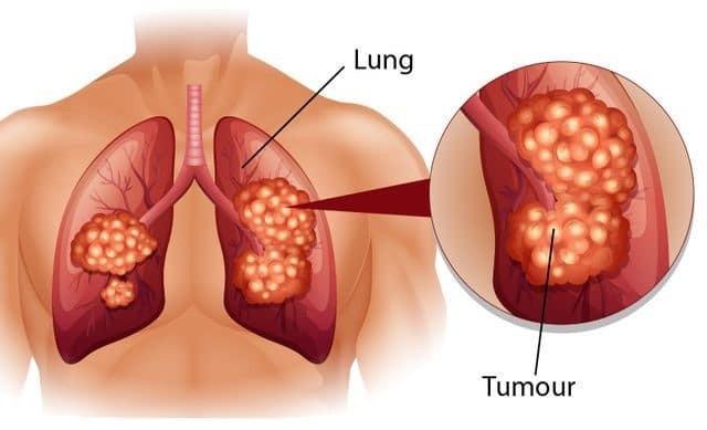 Đôi khi ung thư phổi cũng có thể đau vùng cổ và vai