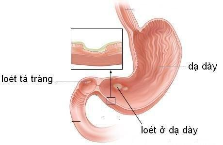 Viêm loét dạ dày đang dần trở nên khá phổ biến