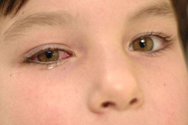 Đau mắt, đỏ mắt và chảy nước mắt là các triệu chứng nghi ngờ viêm giác mạc