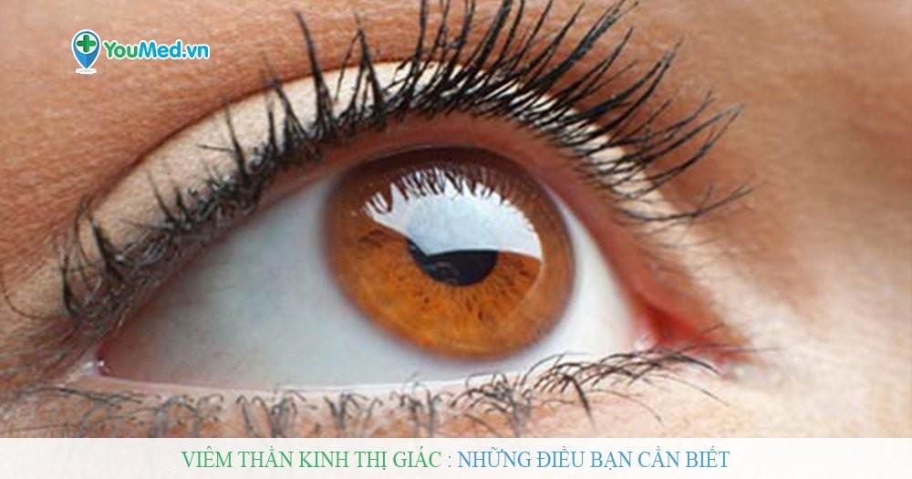 Viêm thần kinh thị giác: những điều bạn cần biết