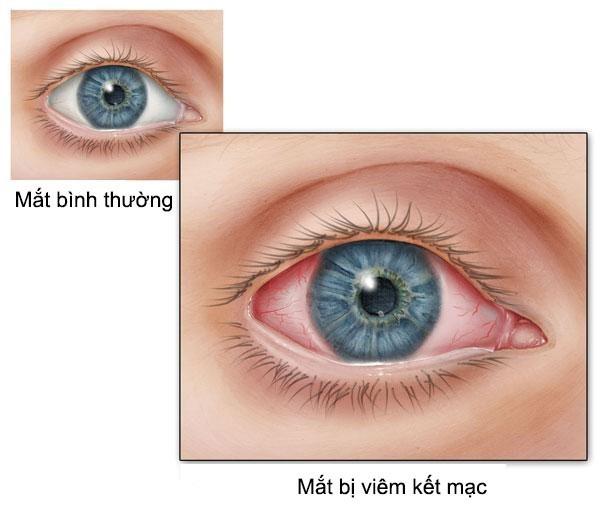 Xuất huyết dưới kết mạc trong viêm kết mạc mắt