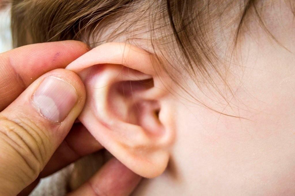 viêm ống tai 5