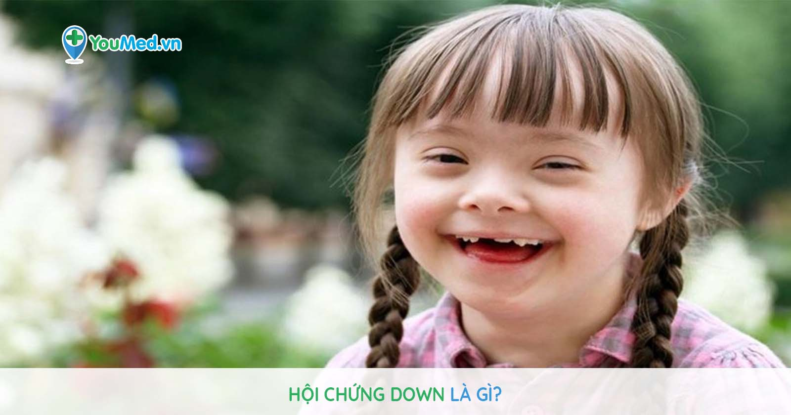 Hội chứng Down là gì?