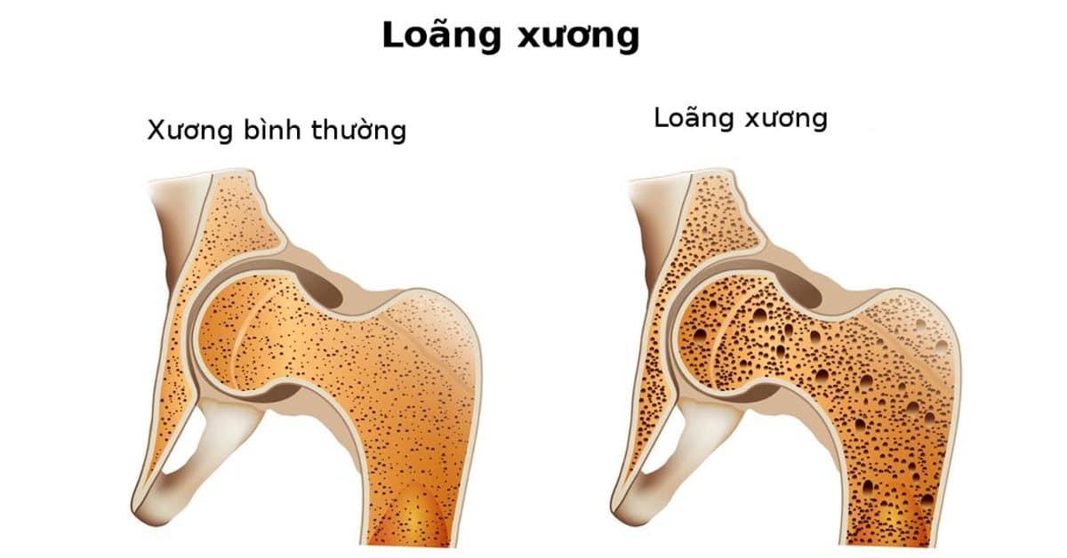 Thuốc Fosamax Plus trị bệnh loãng xương