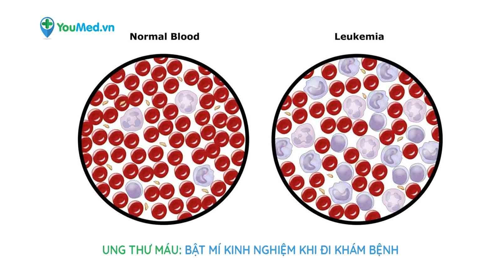 Ung thư máu: bật mí kinh nghiệm khi đi khám bệnh