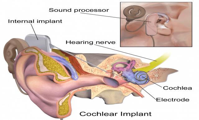 Điều trị phẫu thuật nghe kém