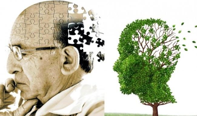 Cần chuẩn bị gì trước khi đi khám bệnh Alzheimer?