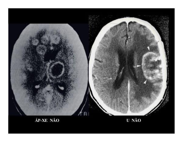 Hình ảnh áp xe não qua chụp MRI