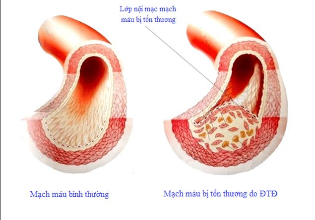 Đường tích tụ trên lớp nội mach mạch máu. làm giảm lưu lượng máu tới tưới cơ quan.