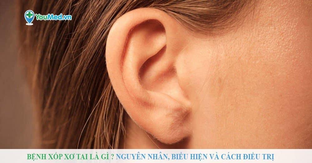 Bệnh xốp xơ tai là gì? Nguyên nhân, biểu hiện và cách điều trị