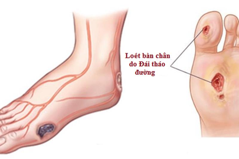Khi bị đái tháo đường, hãy thận trọng với bất cứ thay đổi nào trên bàn chân.