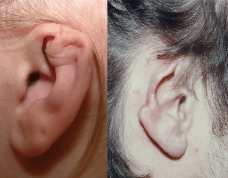 Biến chứng của viêm sụn vành tai