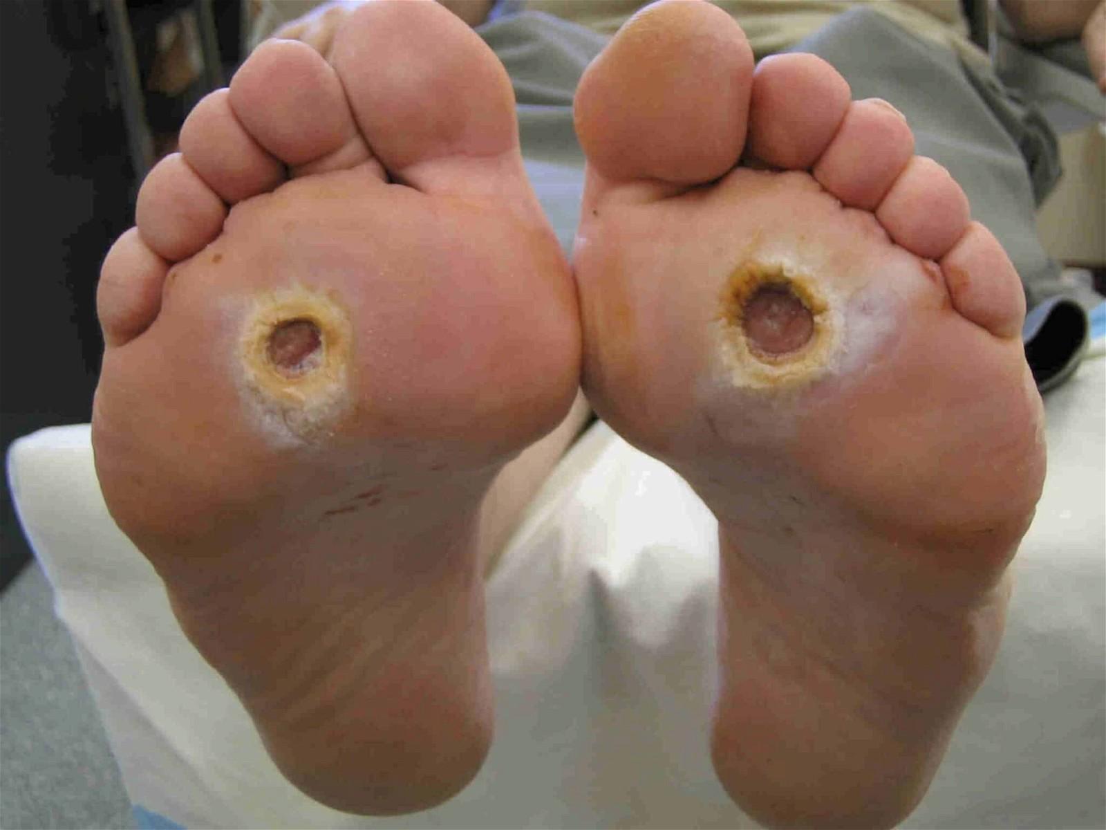 Nhiễm trùng nặng có thể gây ra các ổ áp xe.