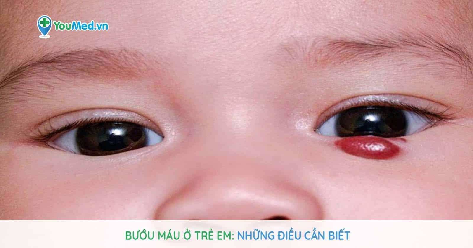 Bướu máu ở trẻ em: Những điều cần biết