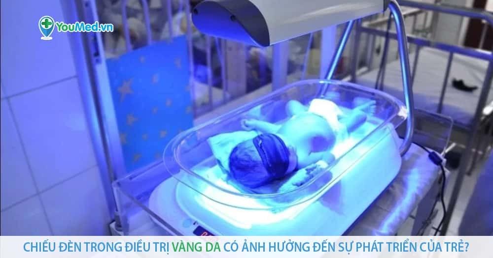 Chiếu đèn trong điều trị vàng da có ảnh hưởng đến sự phát triển của trẻ?