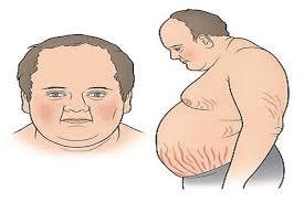 Tụ mỡ quanh bụng, gây rạn nứt da