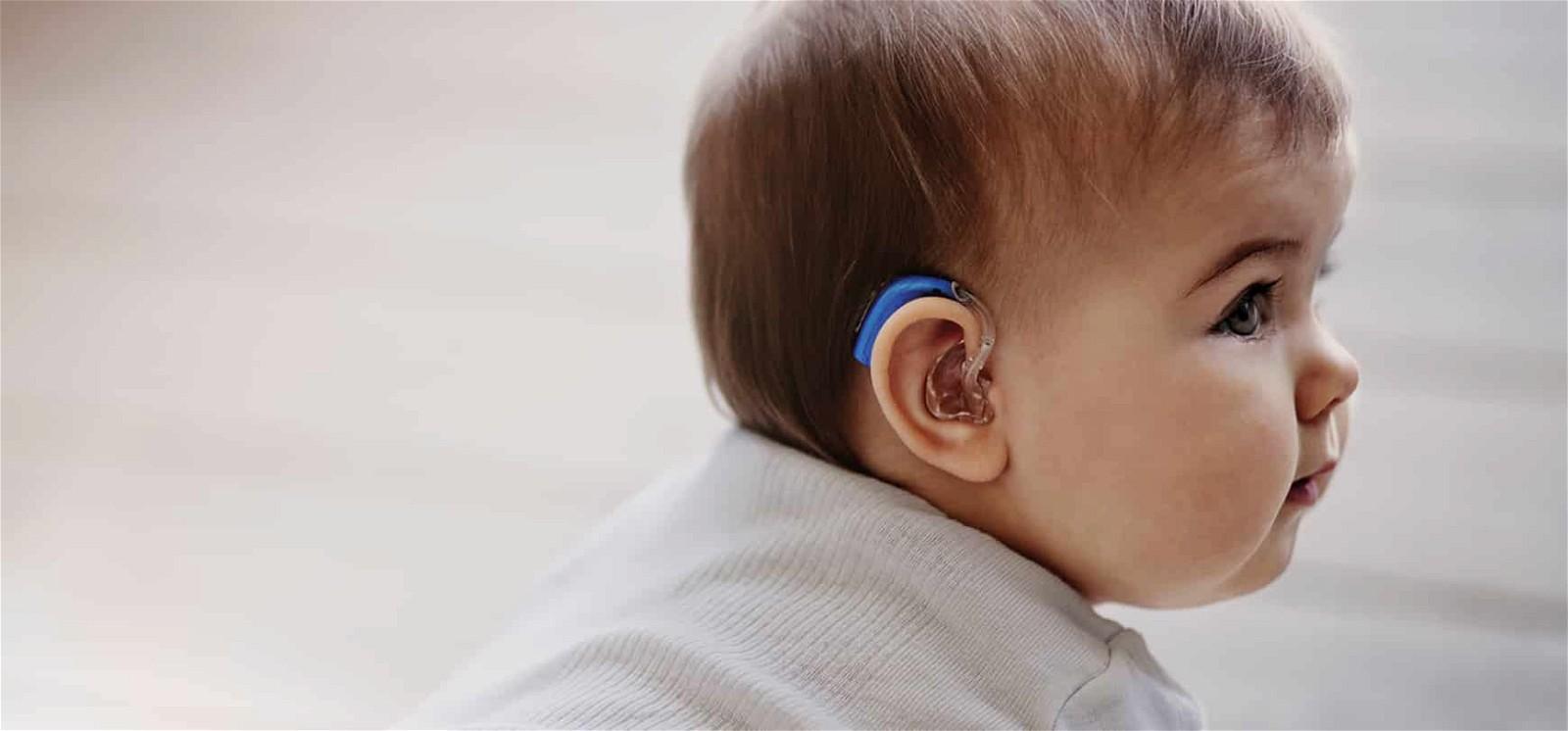 Điều trị mất thính lực ở trẻ như thế nào?