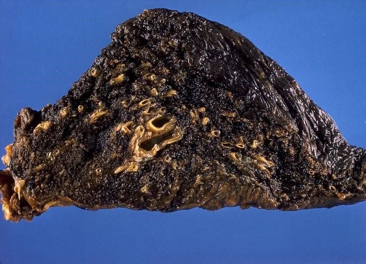 Bệnh phổi đen ở công nhân hầm mỏ là một dạng bệnh bụi phổi