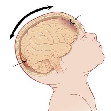 Rung lắc mạnh có thể tổn thương não của trẻ