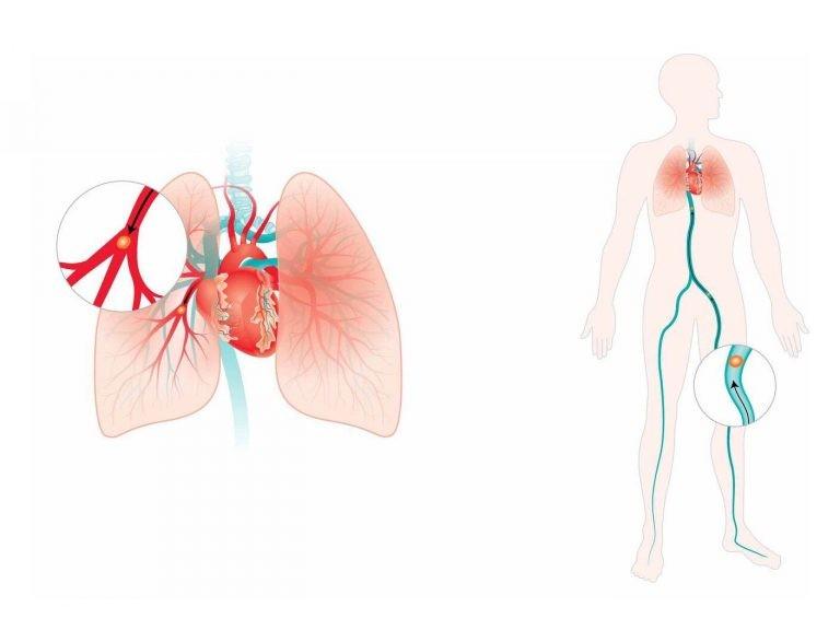 Huyết khối theo tĩnh mạch có thể gây thuyên tắc phổi