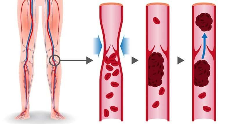 Huyết khối hình thành trong các tĩnh mạch, chủ yếu là tĩnh mạch chi dưới